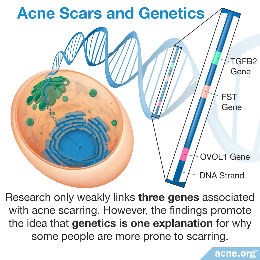 Acne Scars and Genetics