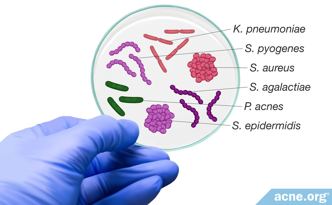 Petrie Dish with Bacteria Associated with Acne
