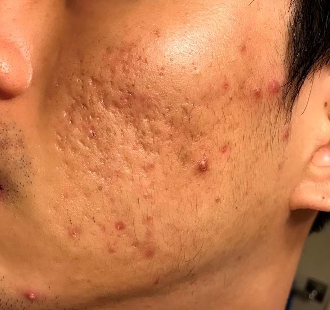 accutane hair loss low dose