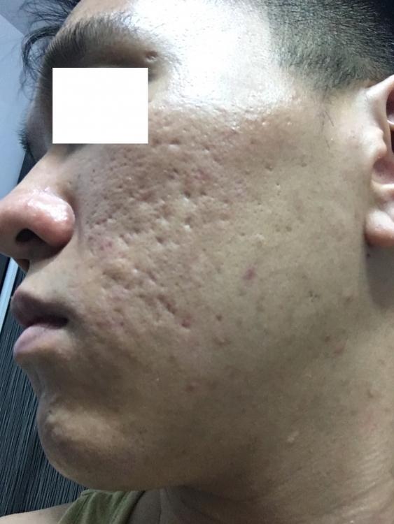 acne2.thumb.jpg.b4125735a6540d7bb5169fc843647c7b.jpg