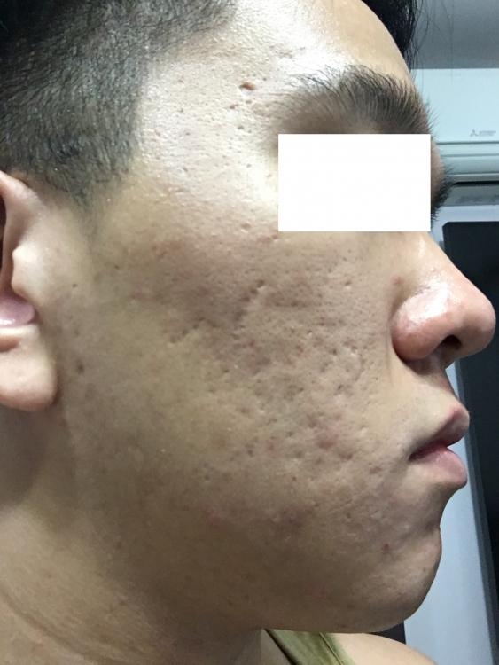 acne3.thumb.jpg.81c6ba9e49e57fe8b9e8a103078583c2.jpg