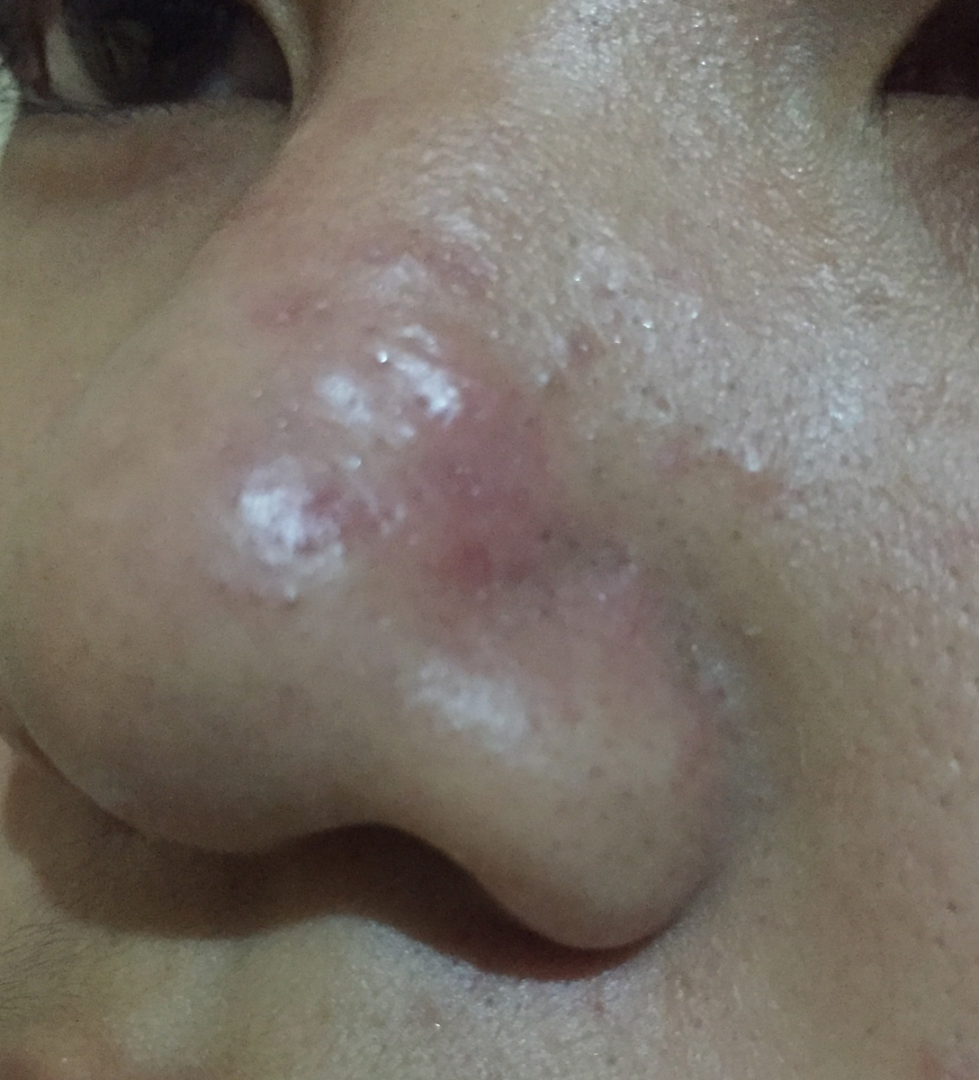 Acne scars and bumps on nose