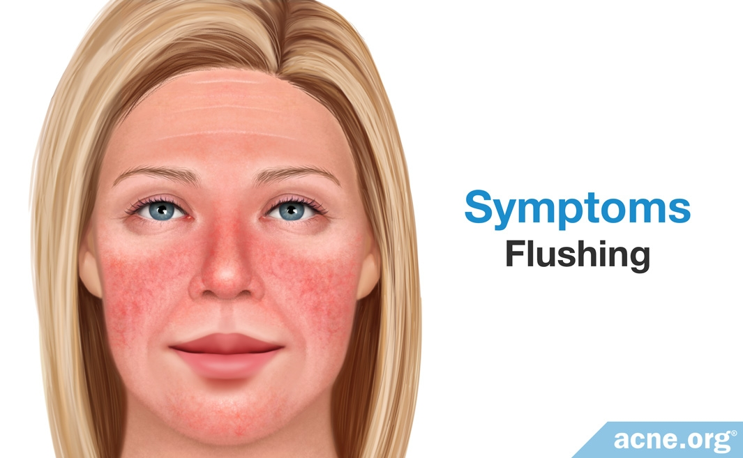 Rosacea Symptoms: Flushing