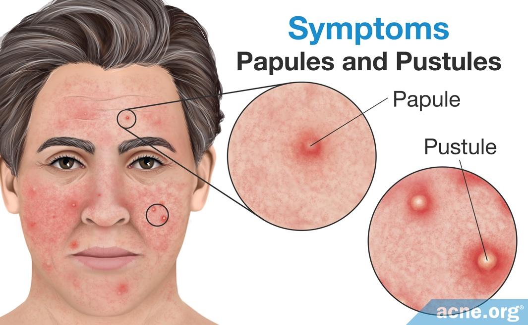 Rosacea Symptoms: Papules and Pustules