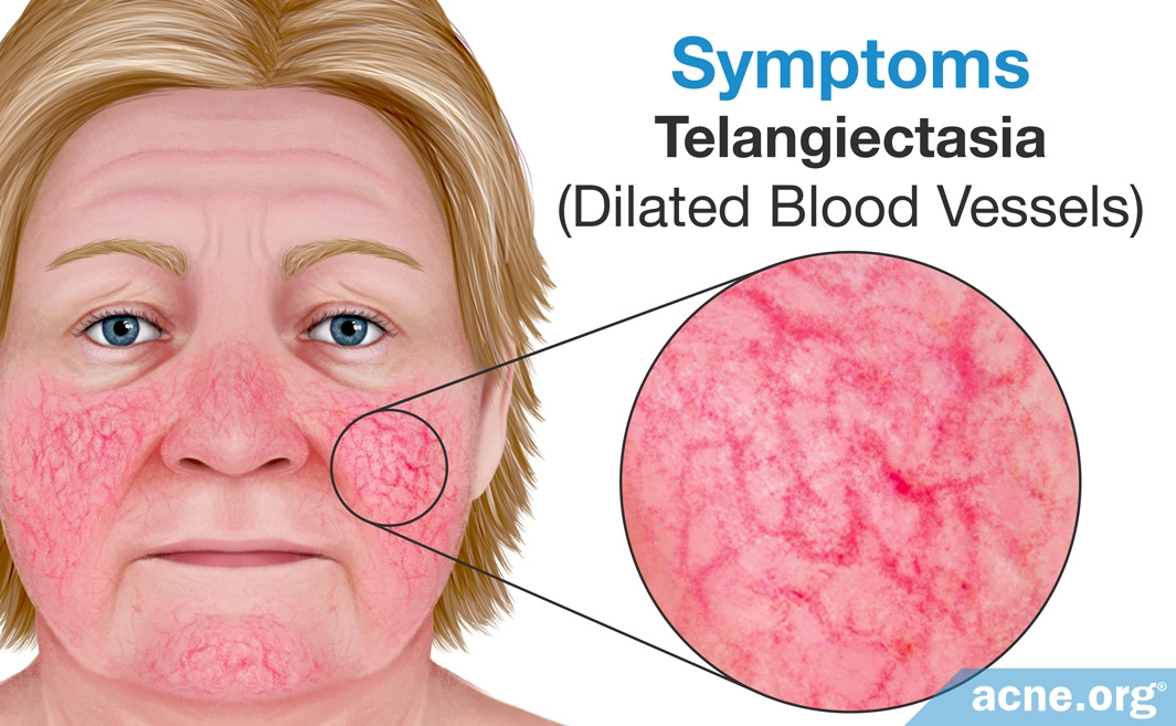 Rosacea Symptoms: Dilated Blood Vessels