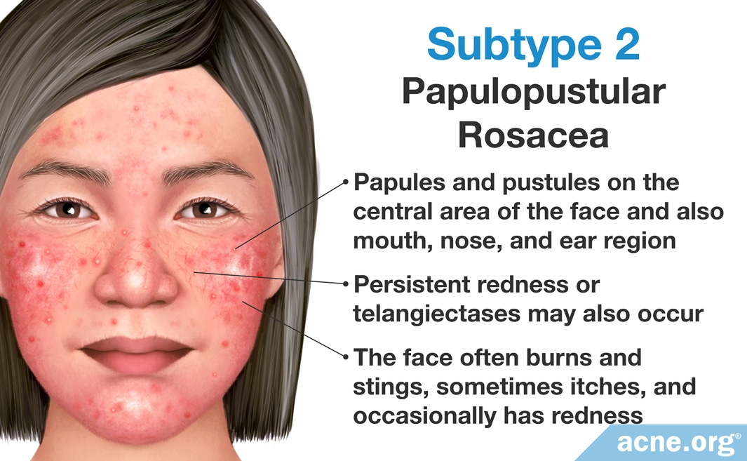 Think, what Treatment information facial rosacea sorry, that