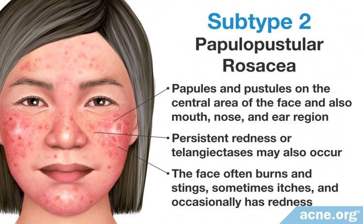 Subtype 2: Papulopustular Rosacea