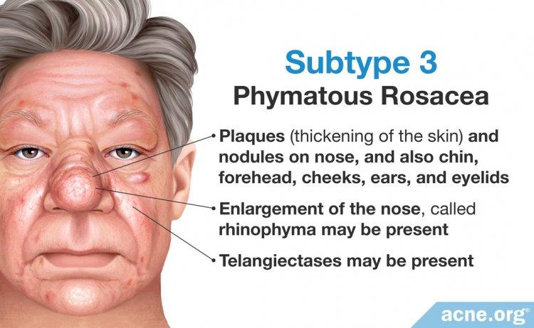 Subtype 3: Phymatous Rosacea