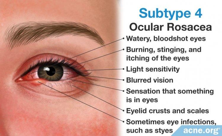 Subtype 4: Ocular Rosacea