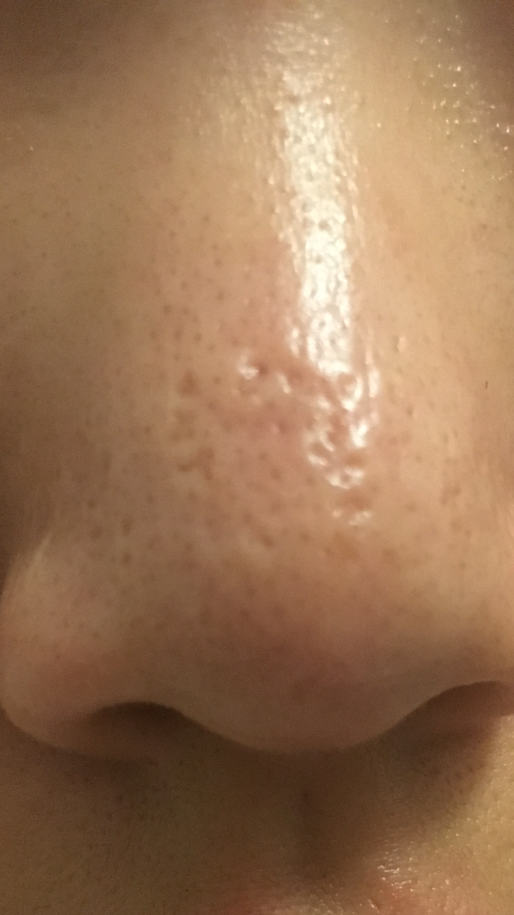 Nose Scars Could These Get Better Scar Treatments Acne Org