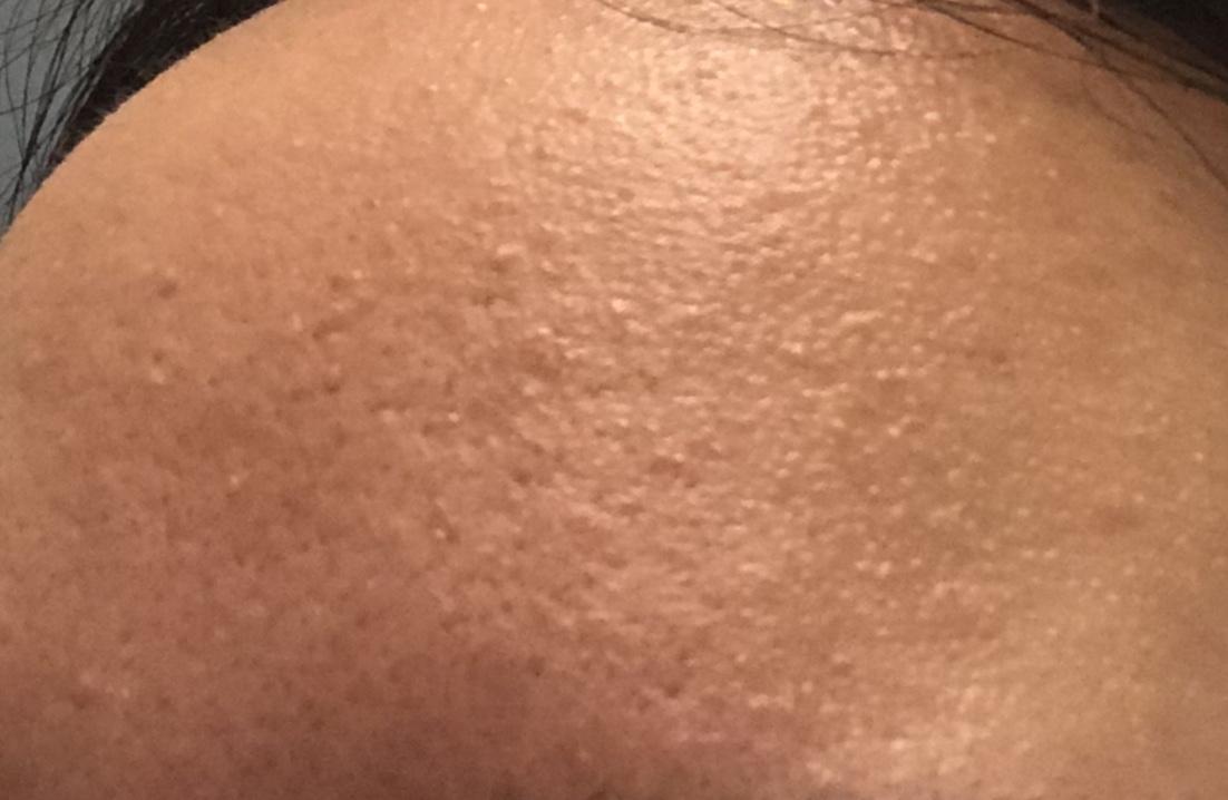 bumpy skin texture