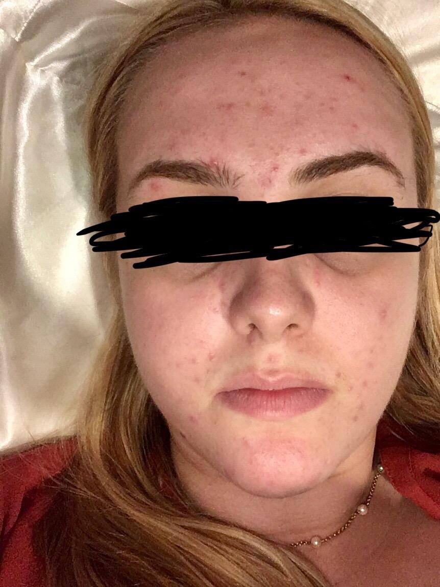 Help! Mirena IUD acne