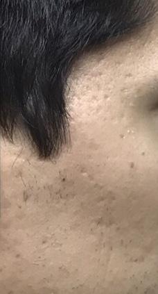 Acne Scars Album