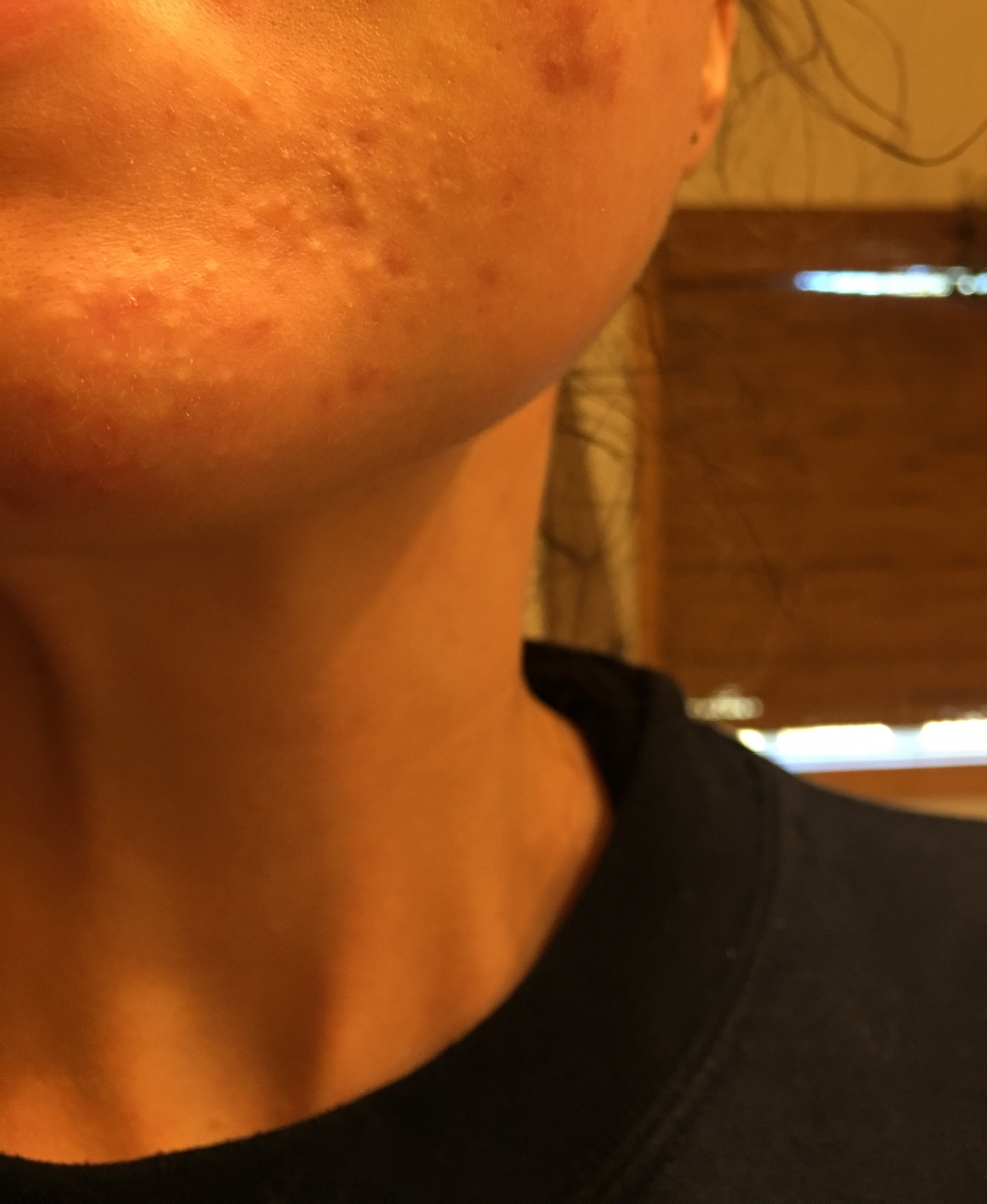 Small, skin-colored bumps