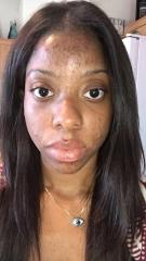 I Cleared my acne