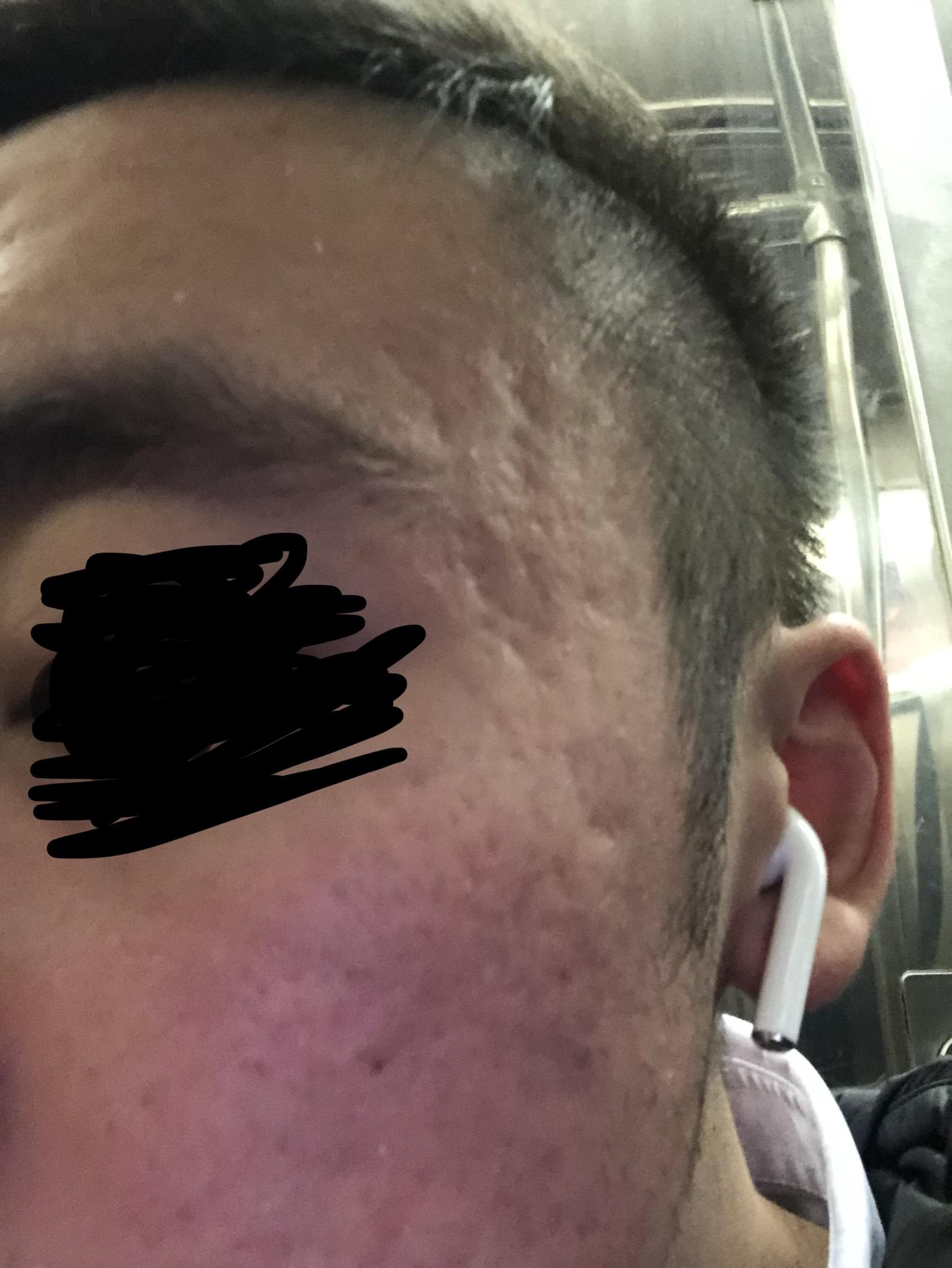 Desperate Question On My Scar Acne Scar Treatments While High Dose Accutane Scar Treatments Acne Org