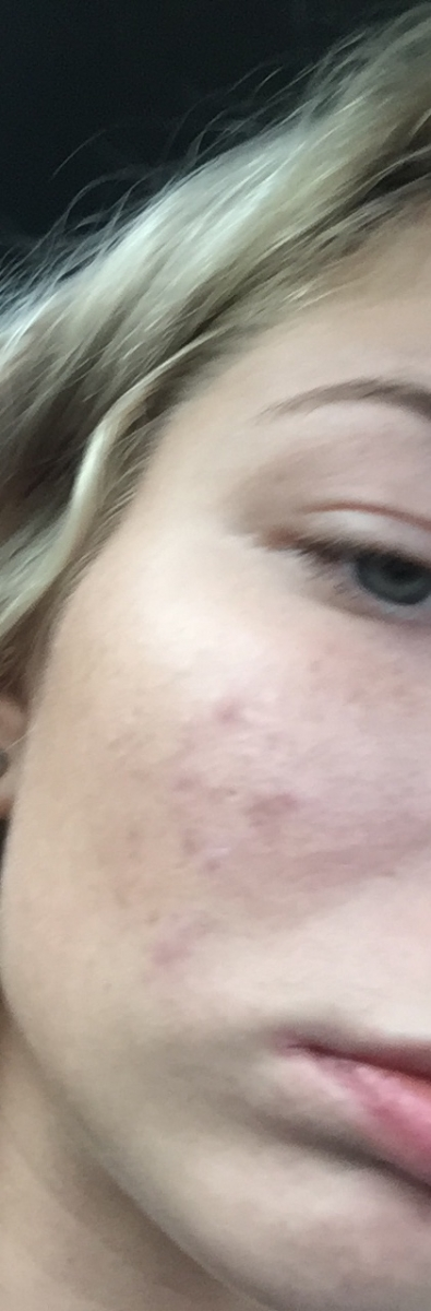 What kind of acne is this?? HELP