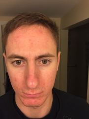 First day of Accutane (just got off minocycline)