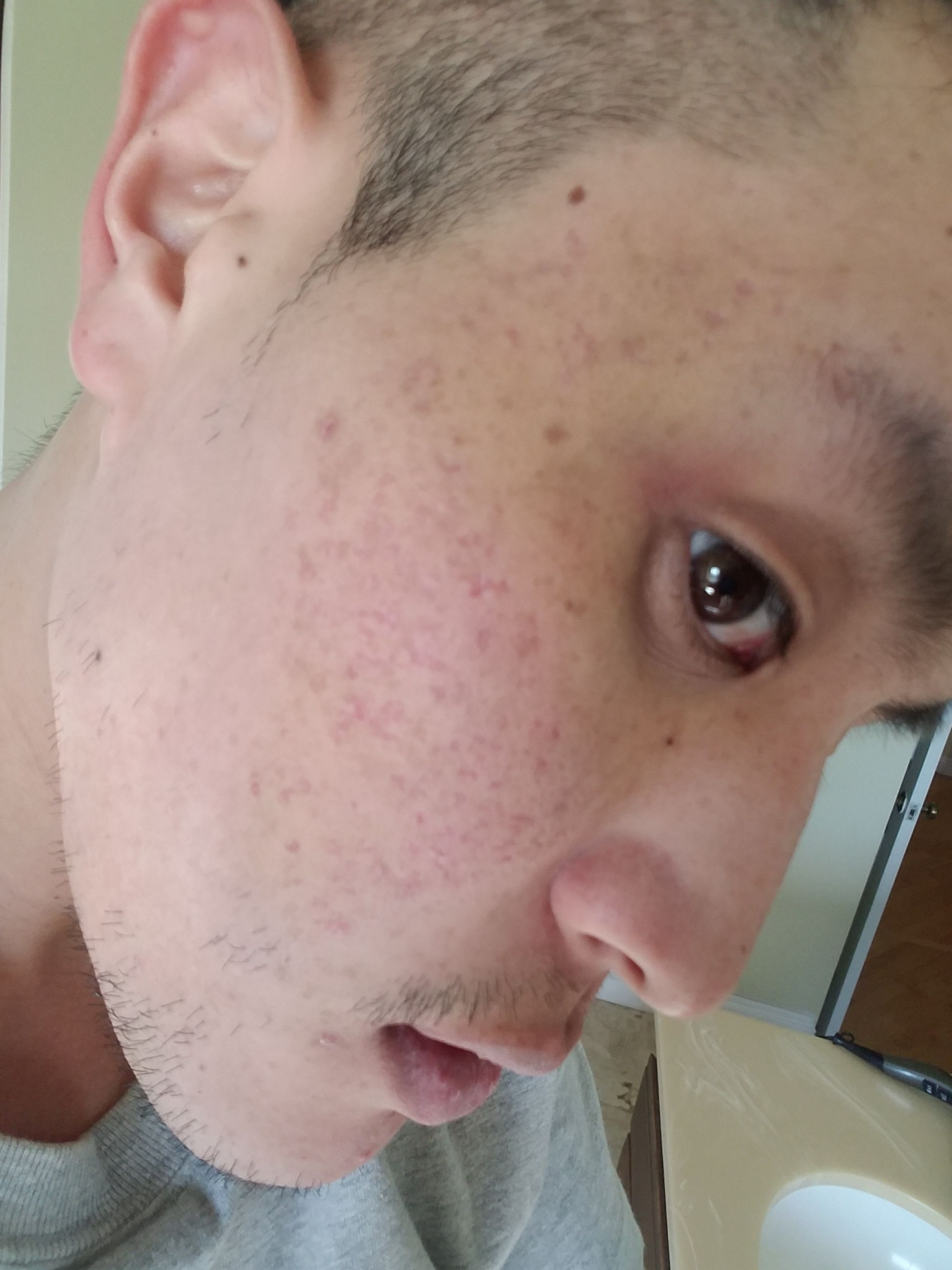 My journey with Dr  Rullan (TCA, subcision, microneedling