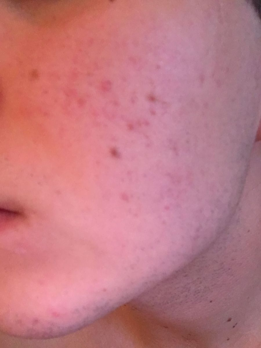 Red Marks Cheeks Acne Only (Allergy?)