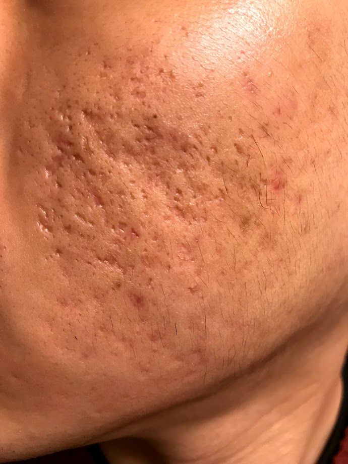 TCA Cross + Subcision + Low Dose Accutane (Photos) - Scar