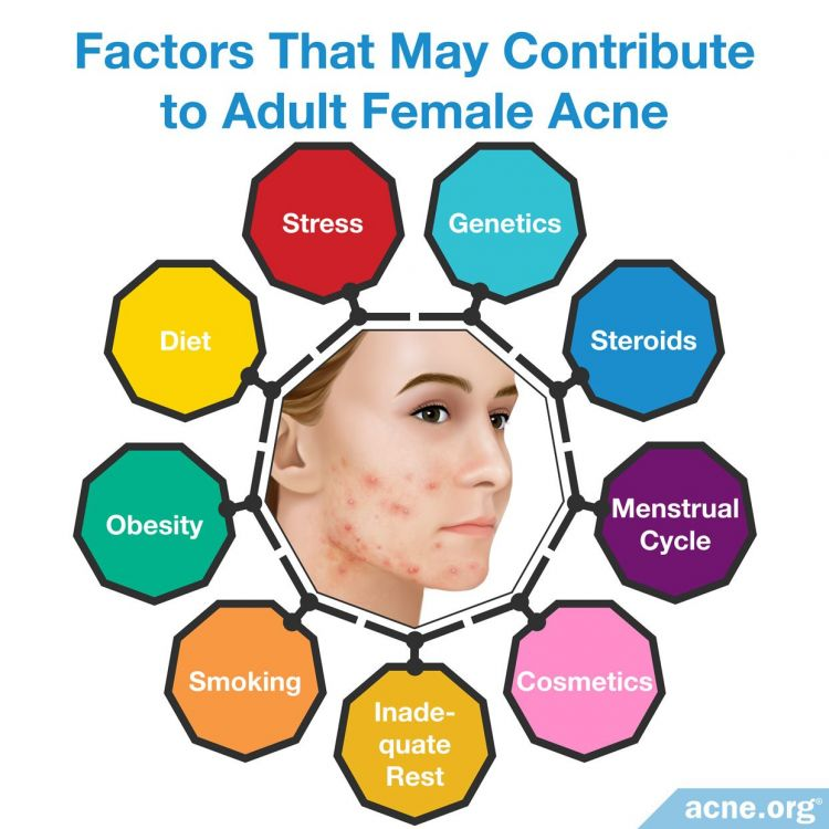 Factors that may contribute to adult female acne