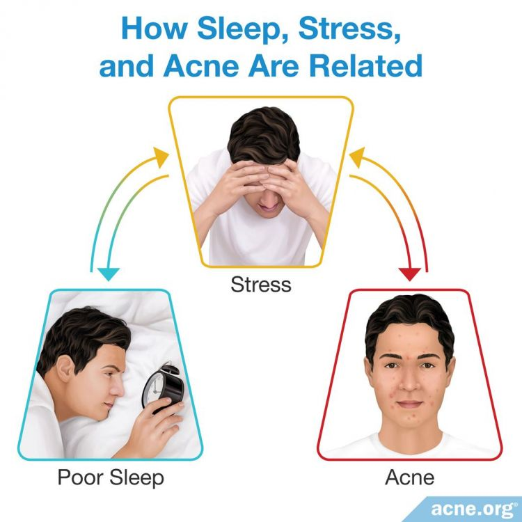 How sleep stress and acne are related