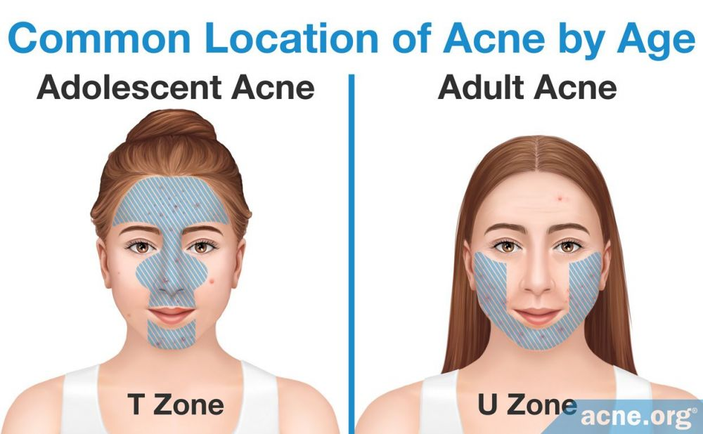 Common location of acne by age