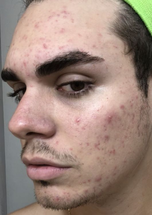 Acne Before.jpg