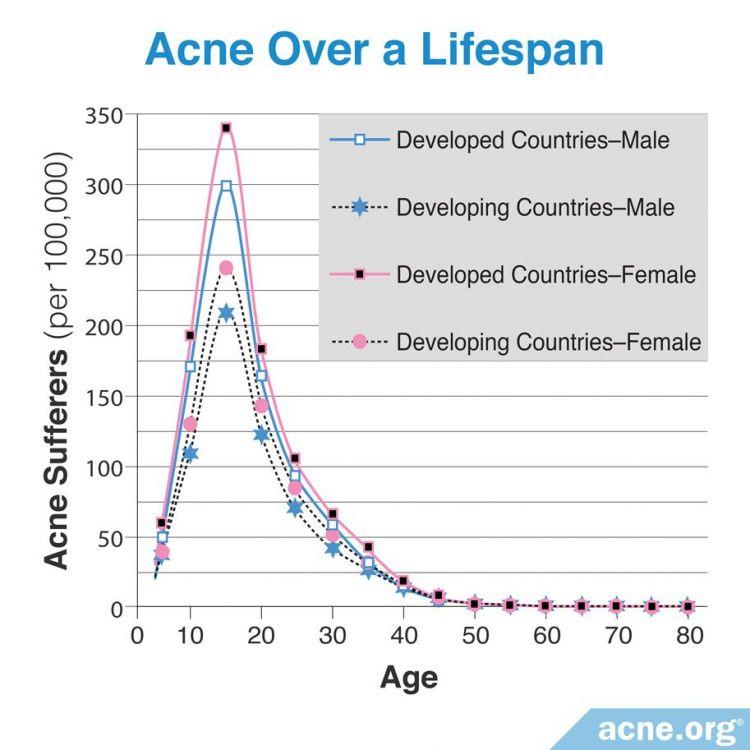 Acne over a lifespan