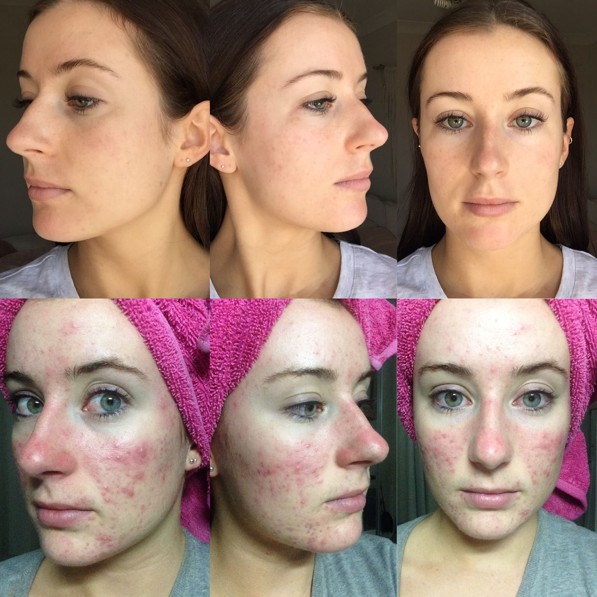 Spironolactone for adult acne