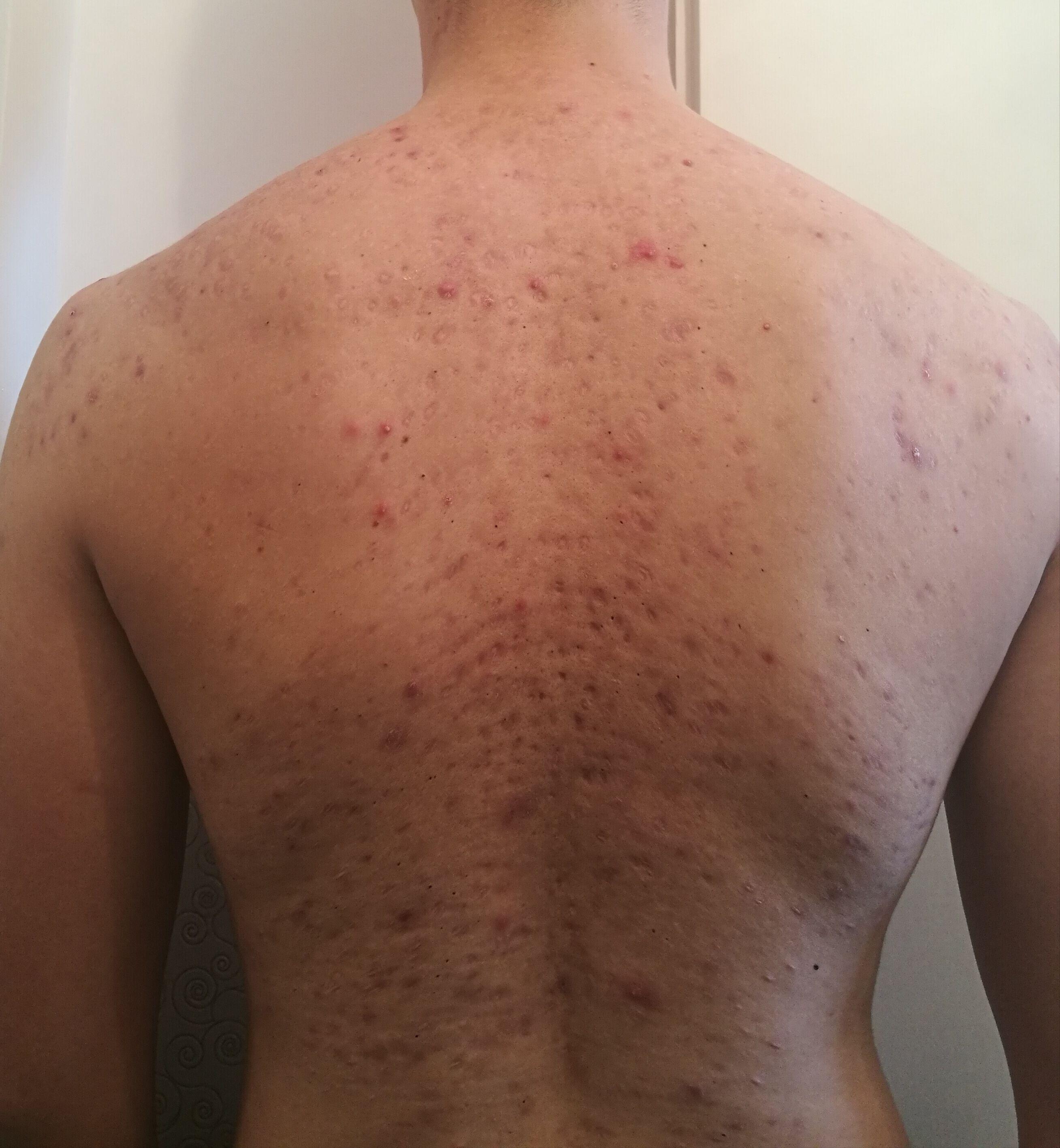 Severe Body Acne Scars Hypertrophic Raised Scars Acne Org