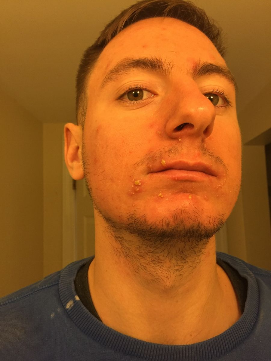 10 Days Into treatment ( Pustules Aren't Staph Infections Apparently)