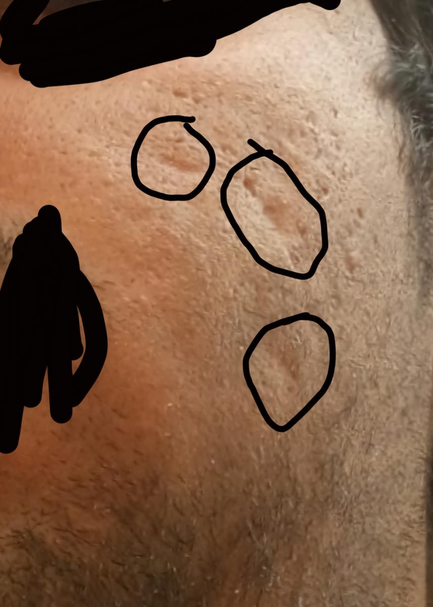 My acne scar