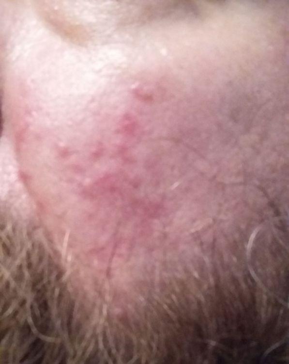 acne1.jpg