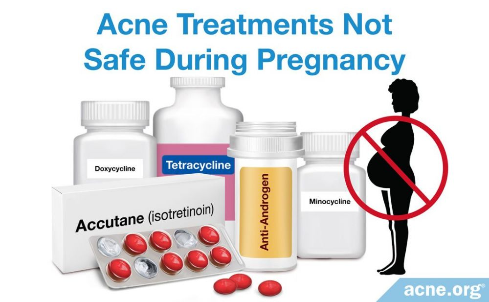 Acne Treatments Not Safe During Pregnancy
