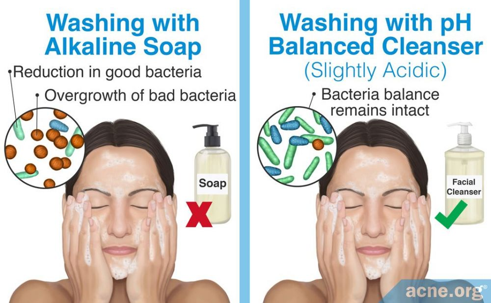 Washing with Alkaline Soap Vs pH Balanced Cleanser