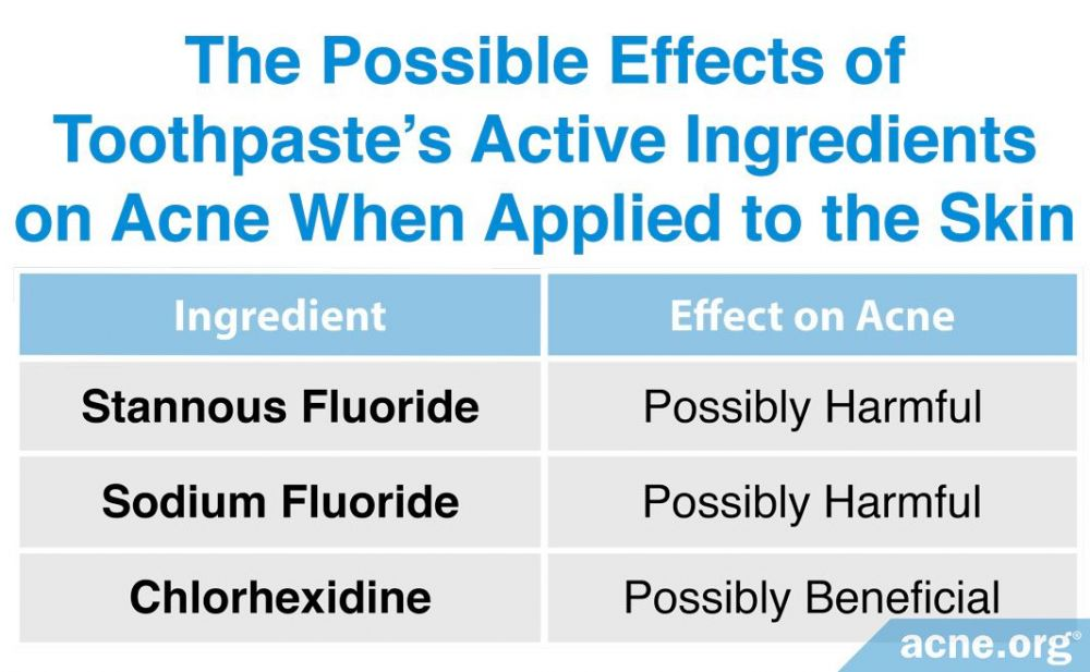 The Possible Effects of Toothpaste's Active Ingredients on Acne When Applied to the Skin