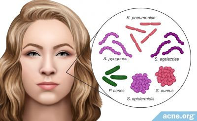 Do Different Strains of Acne Bacteria Affect Acne Differently?