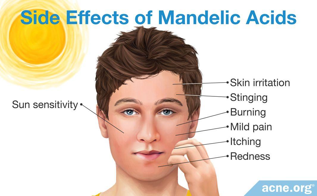 Side Effects of Mandelic Acids