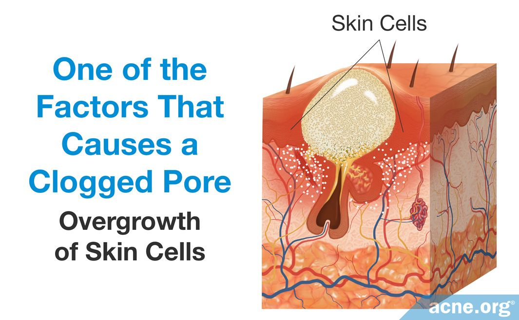 00 Overgrowth of Skin Cells Causes a Clogged Pore.jpg