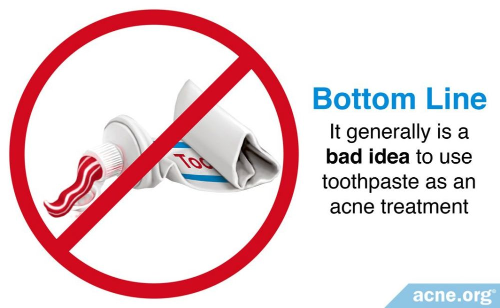 It Is Generally a Bad Idea to Use Toothpaste on Acne