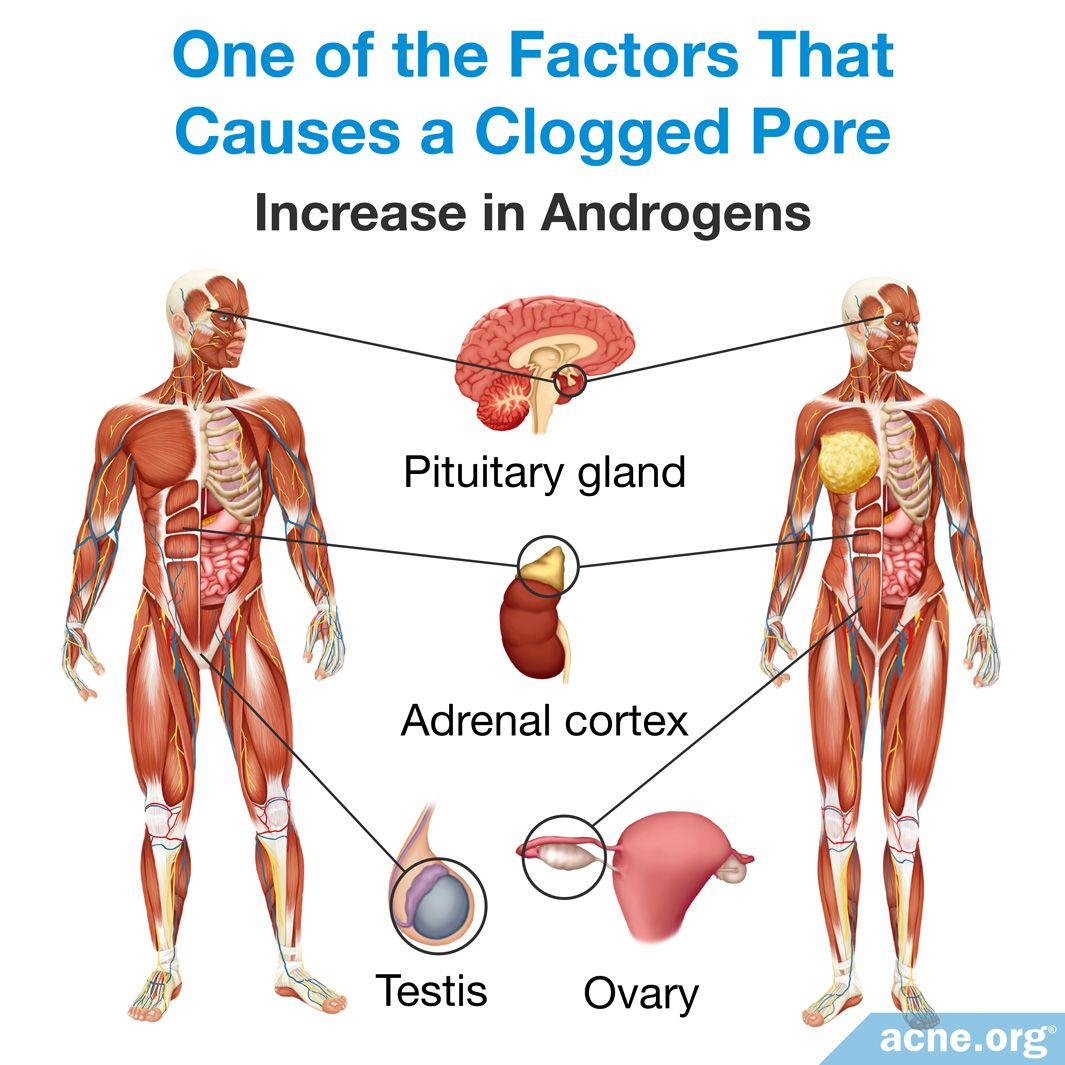 00 Increase in Androgens Causes a Clogged Pore.jpg