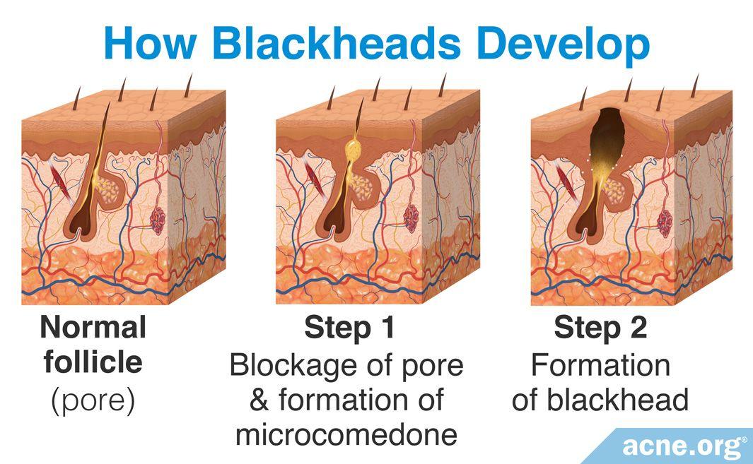How Blackheads Develop