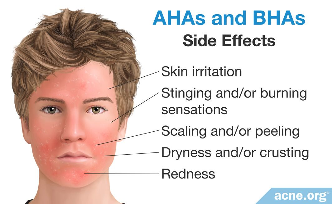 Side Effects of AHAs and BHAs