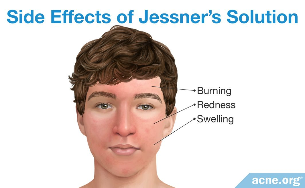 Side Effects of Jessner's Solution