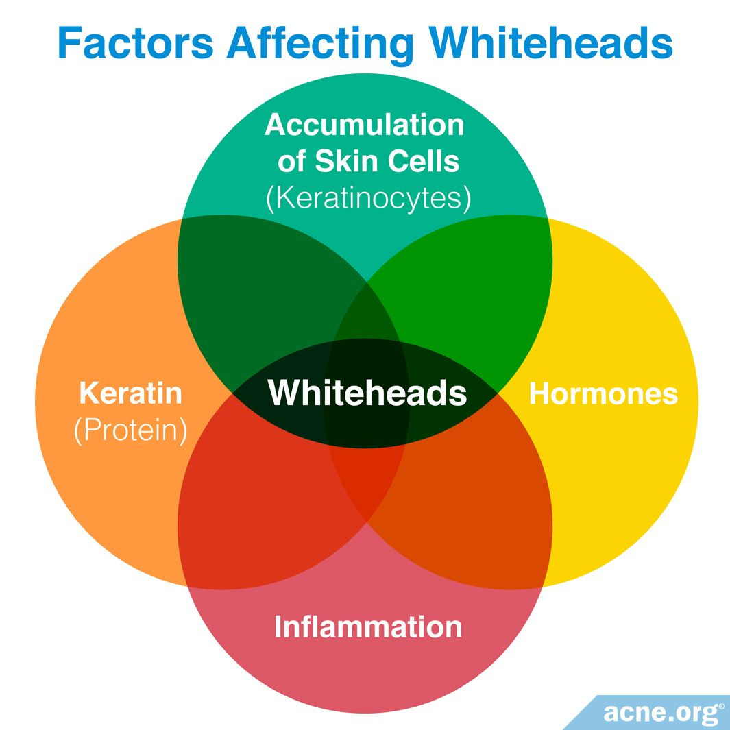Factors Affecting Whiteheads