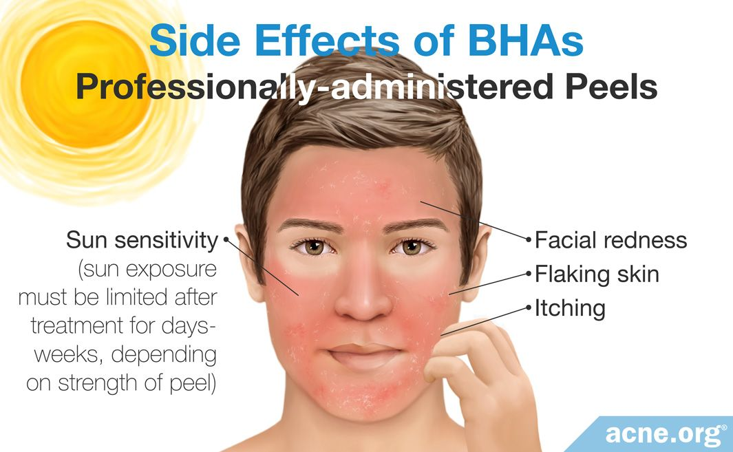 Side Effects of Professionally-administered BHA Peels