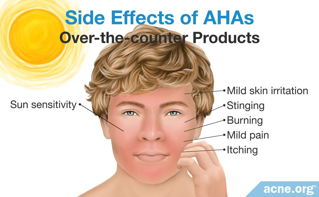 Side Effects of Over-the-counter AHAs Products