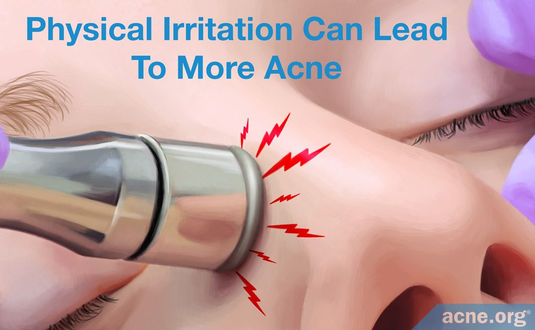 Physical Irritation Can Lead to More Acne